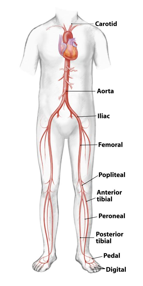 Vascular Surgery Lower Extremity Artery Diagram