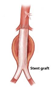 Diagram of a stent graft placement in the aorta