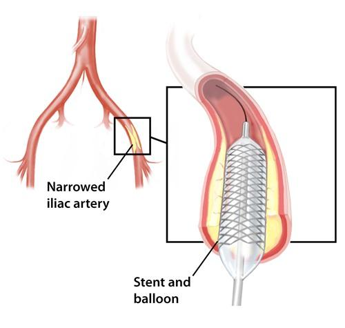 Diagram of stent placement