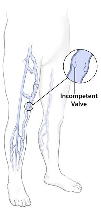Diagram showing varicose veins in the leg