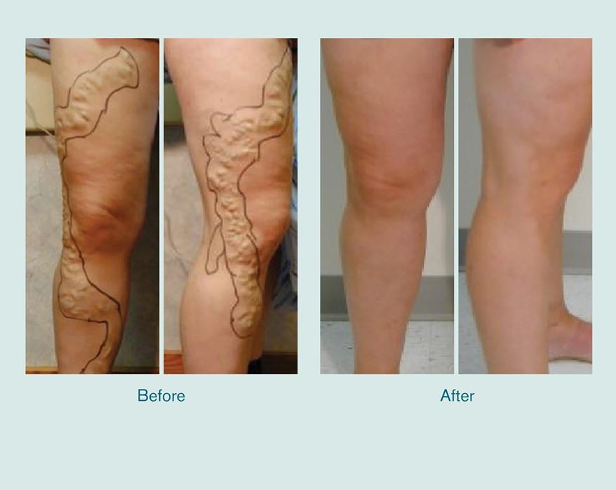 Before and after legs treated with TRIVEX