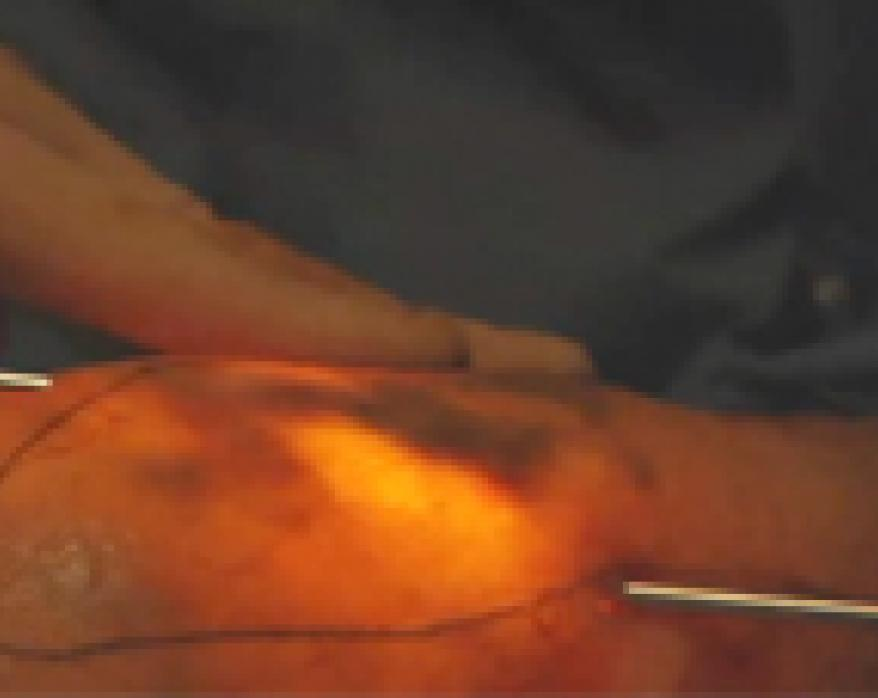 Transilluminated Powered Phlebectomy